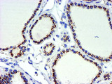 IHC of paraffin-embedded Carcinoma of Human thyroid tissue using anti-GOLM1 mouse monoclonal antibody.