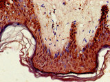 Immunohistochemistry of paraffin-embedded human skin tissue at dilution of 1:100