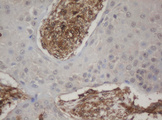 IHC of paraffin-embedded Carcinoma of Human lung tissue using anti-HBS1L mouse monoclonal antibody. (Heat-induced epitope retrieval by 10mM citric buffer, pH6.0, 100C for 10min).