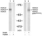 Western blot of extract from 3T3 cell using Rabbit Anti-HDAC4/HDAC5/HDAC9 (Ab-246/259/220) Polyclonal Antibody (lane 1 and 2) and Rabbit Anti-HDAC4/HDAC5/HDAC9 (Phospho-Ser246/259/220) Polyclonal Antibody (lane 3 and 4).