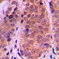 Immunohistochemical analysis of Histone Deacetylase 5 staining in human breast cancer formalin fixed paraffin embedded tissue section. The section was pre-treated using heat mediated antigen retrieval with sodium citrate buffer (pH 6.0). The section was then incubated with the antibody at room temperature and detected using an HRP conjugated compact polymer system. DAB was used as the chromogen. The section was then counterstained with hematoxylin and mounted with DPX.