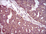 IHC of paraffin-embedded ovarian cancer tissues using PIWIL4 mouse monoclonal antibody with DAB staining.