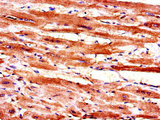 Immunohistochemistry of paraffin-embedded human heart tissue using CSB-PA013372LA01HU at dilution of 1:100