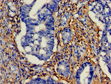 Immunohistochemistry of paraffin-embedded human colon cancer using CSB-PA010902EA01HU at dilution of 1:100