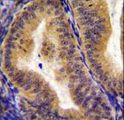 CD130 Antibody immunohistochemistry of formalin-fixed and paraffin-embedded human uterus tissue followed by peroxidase-conjugated secondary antibody and DAB staining.