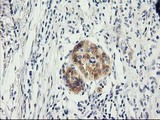 IHC of paraffin-embedded Carcinoma of Human pancreas tissue using anti-ILVBL mouse monoclonal antibody. (Heat-induced epitope retrieval by 10mM citric buffer, pH6.0, 100C for 10min).