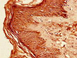 Immunohistochemistry of paraffin-embedded human skin tissue using CSB-PA011822LA01HU at dilution of 1:100