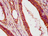 Immunohistochemistry Dilution at 1:600 and staining in paraffin-embedded human colon cancer performed on a Leica BondTM system. After dewaxing and hydration, antigen retrieval was mediated by high pressure in a citrate buffer (pH 6.0). Section was blocked with 10% normal Goat serum 30min at RT. Then primary antibody (1% BSA) was incubated at 4°C overnight. The primary is detected by a biotinylated Secondary antibody and visualized using an HRP conjugated SP system.