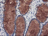 IHC of paraffin-embedded Human colon tissue using anti-KATNB1 mouse monoclonal antibody.