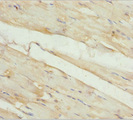 Immunohistochemistry of paraffin-embedded human skeletal muscle tissue at dilution 1:100