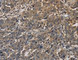 Immunohistochemistry of Human liver cancer using KCNA7 Polyclonal Antibody at dilution of 1:40.