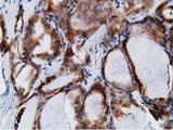 IHC of paraffin-embedded Carcinoma of Human thyroid tissue using anti-KHK mouse monoclonal antibody.
