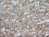 IHC of paraffin-embedded Human liver tissue using anti-KHK mouse monoclonal antibody. (Dilution 1:50).