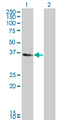 Western Blot analysis of KLF6 expression in transfected 293T cell line by KLF6 monoclonal antibody (M01), clone 1A9.Lane 1: KLF6 transfected lysate(28.71 KDa).Lane 2: Non-transfected lysate.