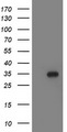 HEK293T cells were transfected with the pCMV6-ENTRY control (Left lane) or pCMV6-ENTRY LACTB2 (Right lane) cDNA for 48 hrs and lysed. Equivalent amounts of cell lysates (5 ug per lane) were separated by SDS-PAGE and immunoblotted with anti-LACTB2.