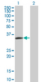 Western Blot analysis of LASP1 expression in transfected 293T cell line by LASP1 monoclonal antibody (M05), clone 4F5.Lane 1: LASP1 transfected lysate(29.7 KDa).Lane 2: Non-transfected lysate.