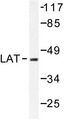 Western blot of LAT (D199) pAb in extracts from A549 cells.