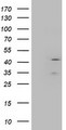 HEK293T cells were transfected with the pCMV6-ENTRY control (Left lane) or pCMV6-ENTRY LAYN (Right lane) cDNA for 48 hrs and lysed. Equivalent amounts of cell lysates (5 ug per lane) were separated by SDS-PAGE and immunoblotted with anti-LAYN.