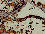Immunohistochemistry of paraffin-embedded human testis tissue using CSB-PA012844LA01HU at dilution of 1:100