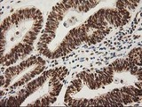 IHC of paraffin-embedded Adenocarcinoma of Human endometrium tissue using anti-LOX mouse monoclonal antibody.