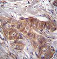 LPAR6 Antibody immunohistochemistry of formalin-fixed and paraffin-embedded human breast carcinoma followed by peroxidase-conjugated secondary antibody and DAB staining.