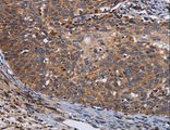Immunohistochemistry of Human cervical cancer using LRRC15 Polyclonal Antibody at dilution of 1:60.