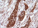 IHC of paraffin-embedded Carcinoma of Human bladder tissue using anti-LZIC mouse monoclonal antibody. (Heat-induced epitope retrieval by 10mM citric buffer, pH6.0, 120°C for 3min).