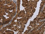 Immunohistochemistry of Human ovarian cancer using MAGEB3 Polyclonal Antibody at dilution of 1:20.