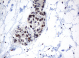 IHC of paraffin-embedded Adenocarcinoma of Human ovary tissue using anti-METT10D mouse monoclonal antibody.