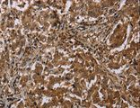 Immunohistochemistry of Human liver cancer using MFF Polyclonal Antibody at dilution of 1:20.