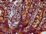 Immunohistochemistry Dilution at 1:700 and staining in paraffin-embedded human small intestine tissue performed on a Leica BondTM system. After dewaxing and hydration, antigen retrieval was mediated by high pressure in a citrate buffer (pH 6.0). Section was blocked with 10% normal Goat serum 30min at RT. Then primary antibody (1% BSA) was incubated at 4°C overnight. The primary is detected by a biotinylated Secondary antibody and visualized using an HRP conjugated SP system.