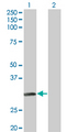 Western Blot analysis of NAT2 expression in transfected 293T cell line by NAT2 monoclonal antibody (M01), clone 3B5.Lane 1: NAT2 transfected lysate(33.5 KDa).Lane 2: Non-transfected lysate.