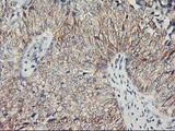 IHC of paraffin-embedded Carcinoma of Human bladder tissue using anti-PVRL1 mouse monoclonal antibody.