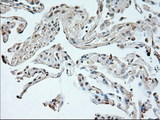 IHC of paraffin-embedded Ovary tissue using anti-NEUROG1 mouse monoclonal antibody. (Dilution 1:50).