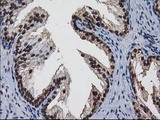 IHC of paraffin-embedded Human prostate tissue using anti-NHEJ1 mouse monoclonal antibody.