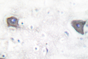 IHC of Cleaved-Notch 1 (V1754) pAb in paraffin-embedded human brain tissue.
