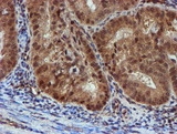 IHC of paraffin-embedded Adenocarcinoma of Human endometrium tissue using anti-NQO2 mouse monoclonal antibody. (Heat-induced epitope retrieval by 10mM citric buffer, pH6.0, 100C for 10min).