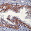 Formalin-fixed, paraffin-embedded human prostate carcinoma stained with peroxidase-conjugate and DAB chromogen. Note cytoplasmic staining of tumor cells.  This image was taken for the unmodified form of this product. Other forms have not been tested.