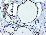 IHC of paraffin-embedded Human thyroid tissue using anti-NT5DC1 mouse monoclonal antibody.