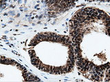 Immunohistochemical staining of paraffin-embedded Adenocarcinoma of Human endometrium tissue using anti-NT5DC1 mouse monoclonal antibody.