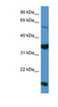 NTNG2 / Netrin G2 antibody LS-C135778 Western blot of HepG2 cell lysate.  This image was taken for the unconjugated form of this product. Other forms have not been tested.