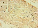 Immunohistochemistry of paraffin-embedded human heart tissue using antibody at 1:100 dilution.  This image was taken for the unconjugated form of this product. Other forms have not been tested.