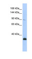 MORC3 antibody LS-C111070 Western blot of Jurkat lysate.  This image was taken for the unconjugated form of this product. Other forms have not been tested.