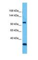 Western blot of MORC3 Antibody with human 293T Whole Cell lysate.  This image was taken for the unconjugated form of this product. Other forms have not been tested.