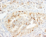 IHC-P: OPCML antibody testing of human breast cancer tissue