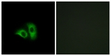 Immunofluorescence of A549 cells, using OR10X1 Antibody. The picture on the right is treated with the synthesized peptide.