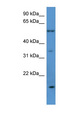 OR2J2 antibody LS-C135601 Western blot of HeLa lysate.  This image was taken for the unconjugated form of this product. Other forms have not been tested.