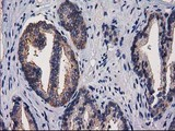 IHC of paraffin-embedded Carcinoma of Human prostate tissue using anti-PACSIN3 mouse monoclonal antibody.