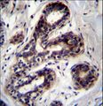 PCCA Antibody immunohistochemistry of formalin-fixed and paraffin-embedded human breast tissue followed by peroxidase-conjugated secondary antibody and DAB staining.
