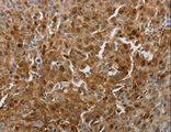 Immunohistochemistry of Human cervical cancer using PDCD2 Polyclonal Antibody at dilution of 1:10.